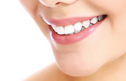 Teeth veneers